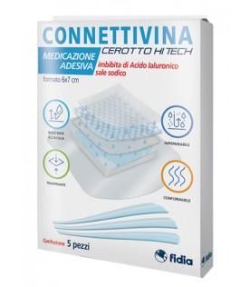 CONNETTIVINA 5Cer.Hitech  6x7